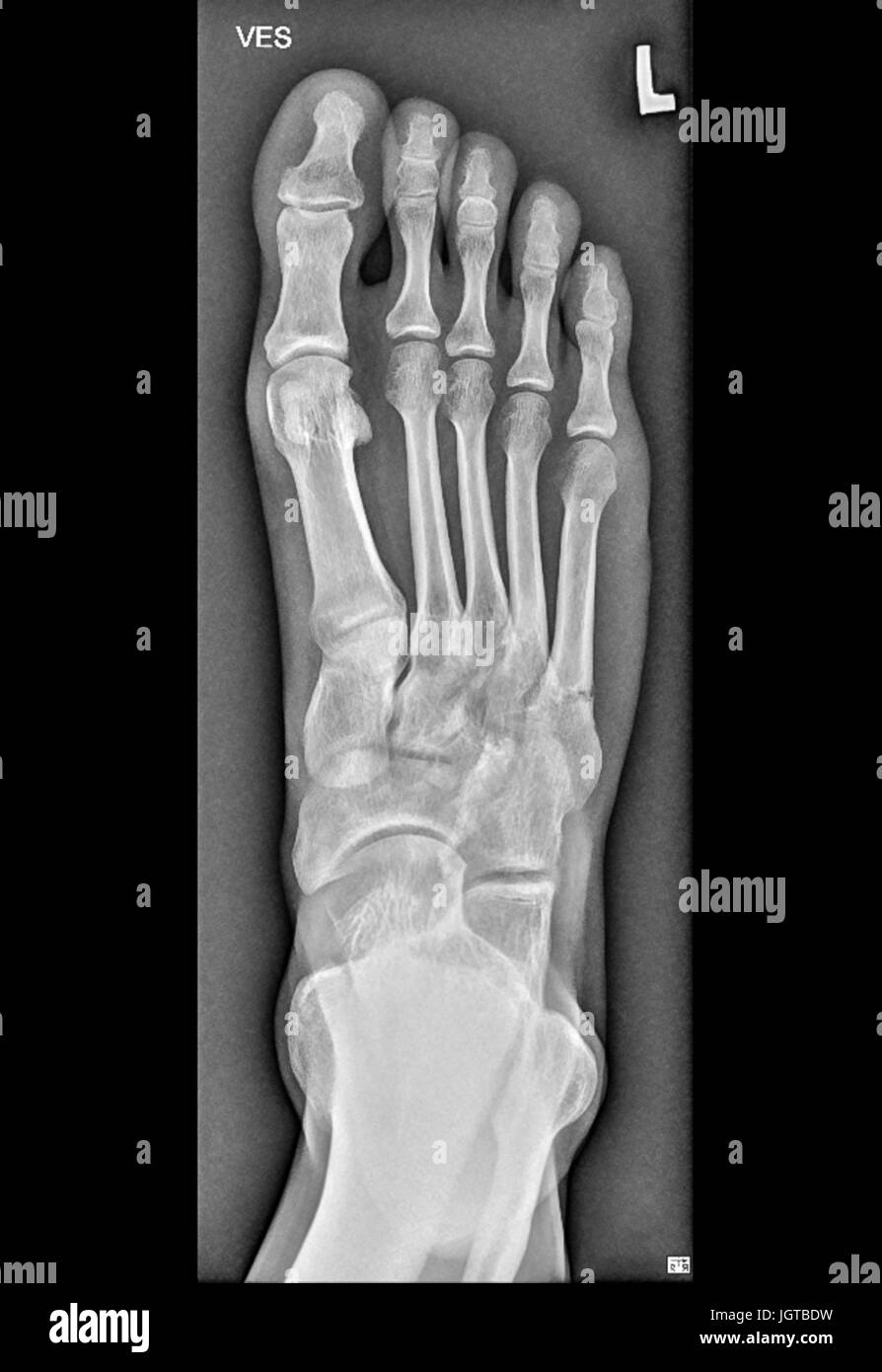 Foot Medical Xray, broken bone, Patient treatment - Stock Image