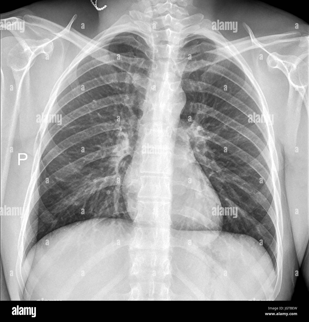 Chest Medical Xray Lungs And Heart View Patient