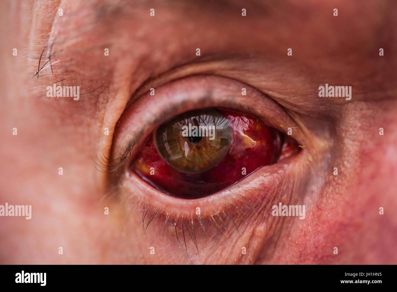 bloodshot-pussy-eyes