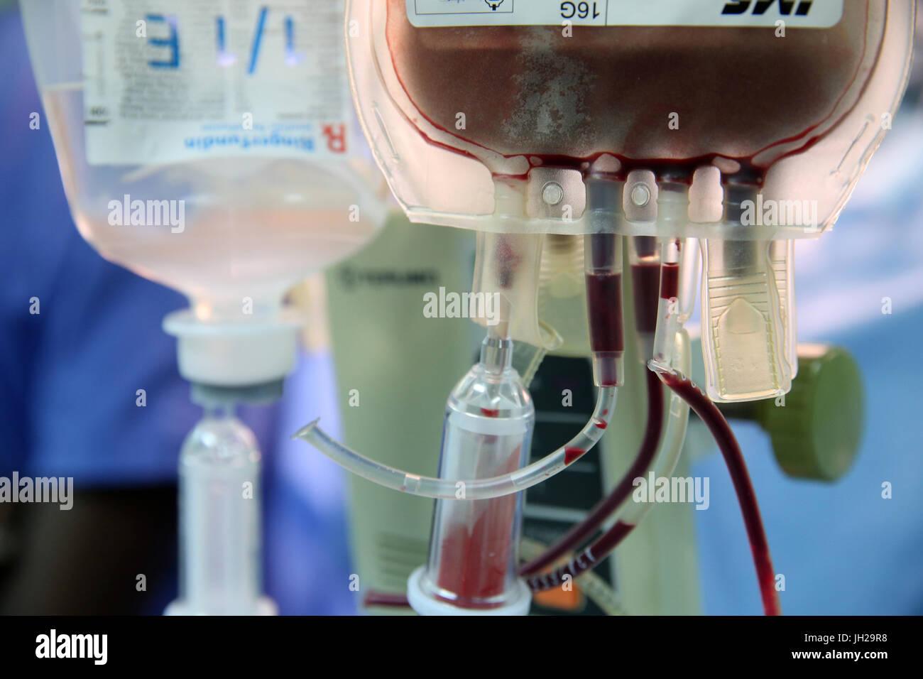 Operating theater.  Blood transfusion. Ho Chi Minh City. Vietnam. - Stock Image