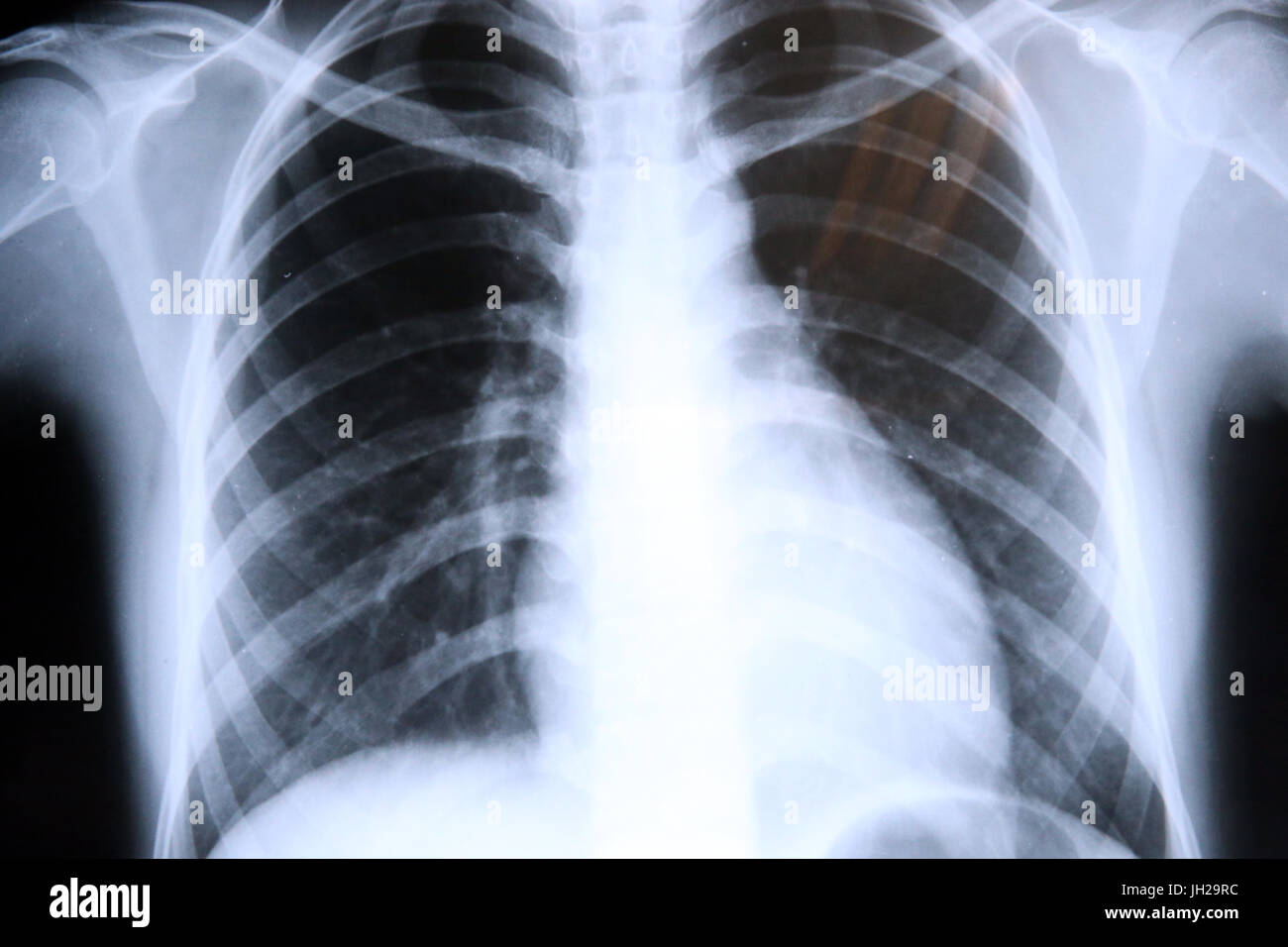 Lungs Radiography. X-rays.  Ho Chi Minh City. Vietnam. - Stock Image