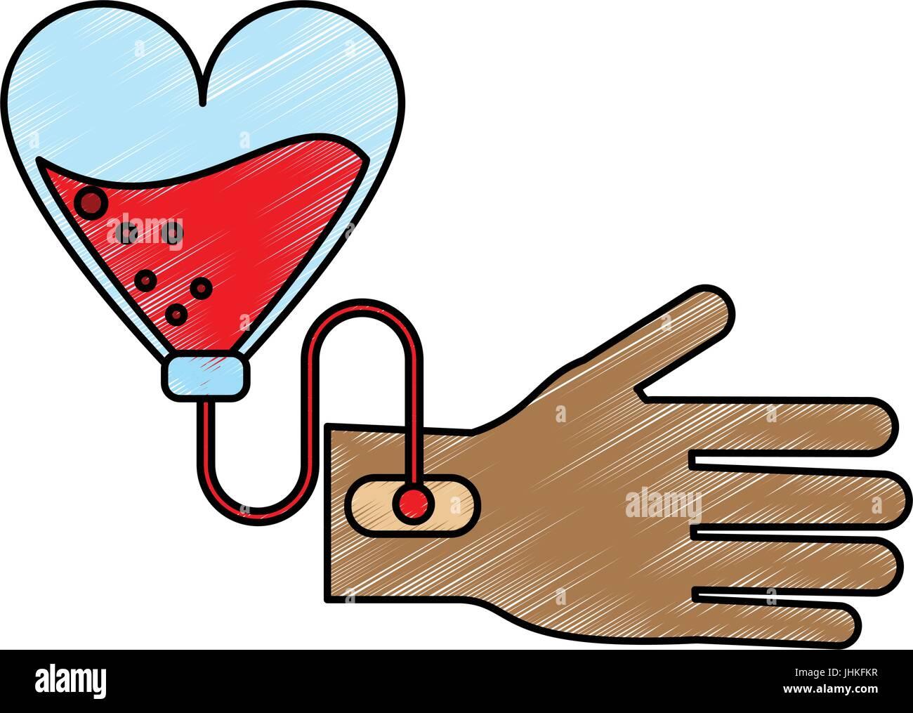 Blood transfusion vector illustration - Stock Image