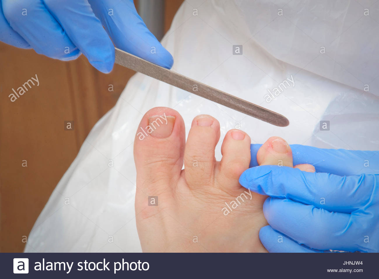 Chiropodist/podiatrist uses an emery board to file the toenails on a ...