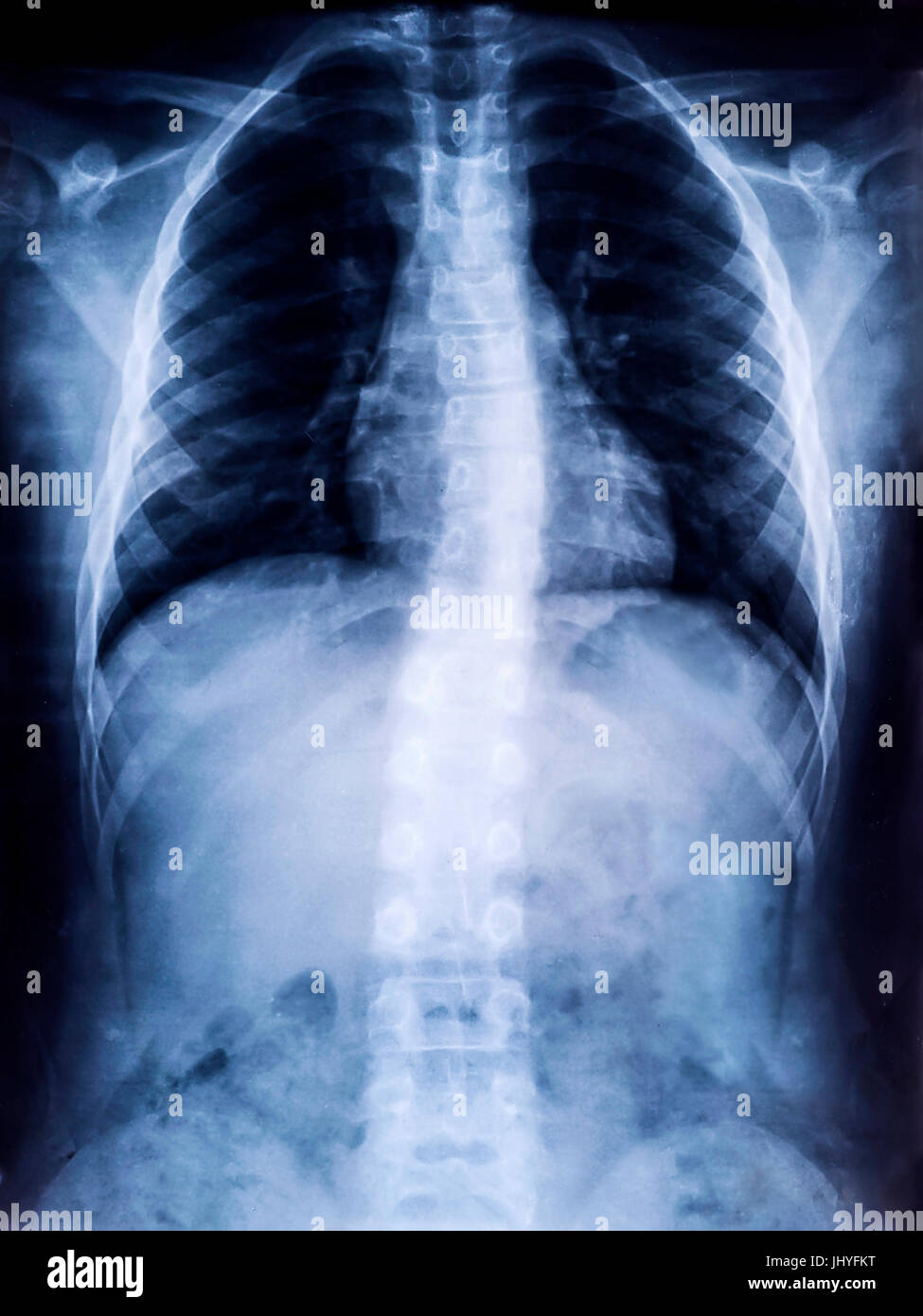 X-Ray Film of Human Spine Scoliosis for Medical Diagnosis - Stock Image