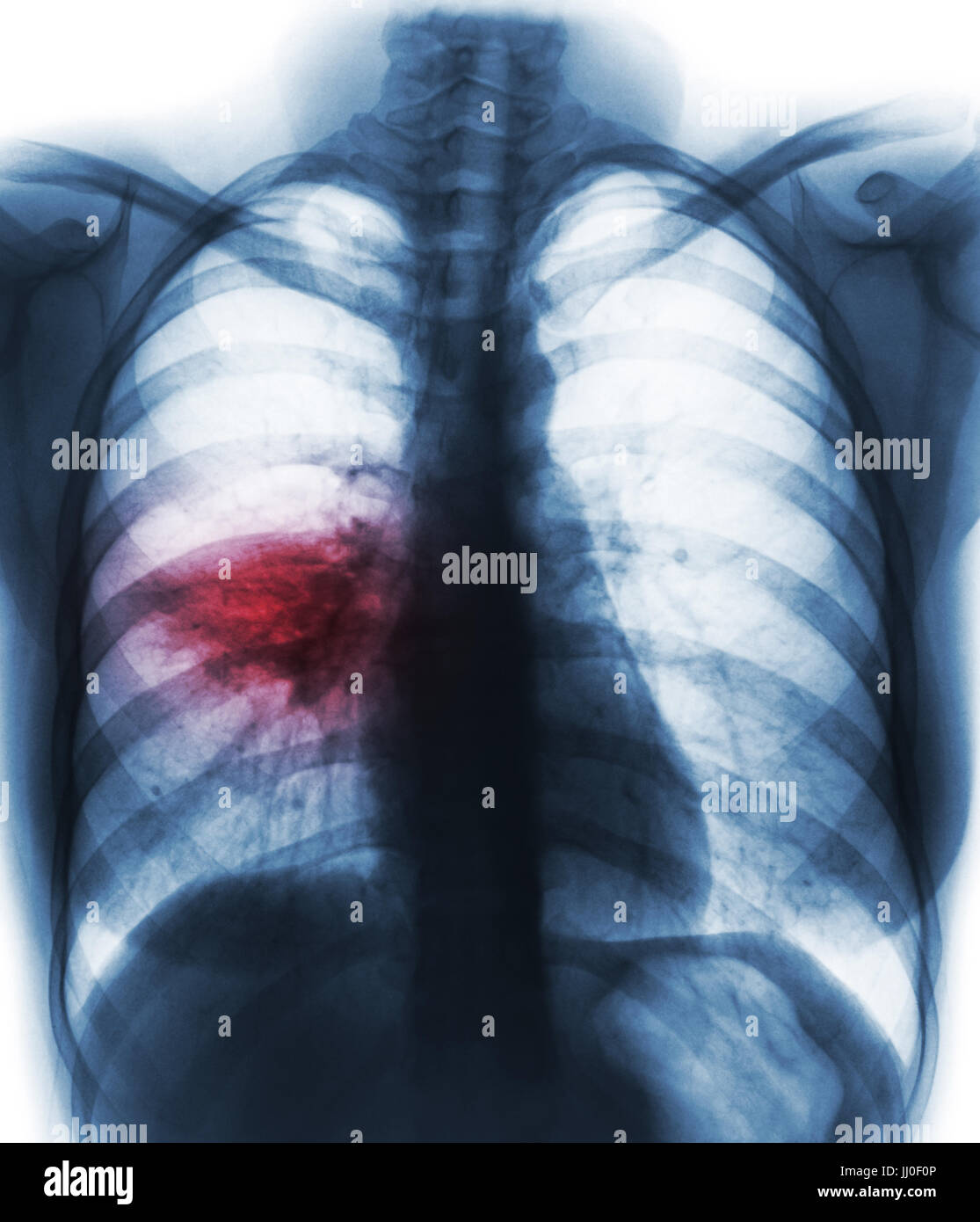 Pneumonia ( film chest x-ray show alveolar infiltrate at right middle lung ) ( image for pulmonary tuberculosis - Stock Image