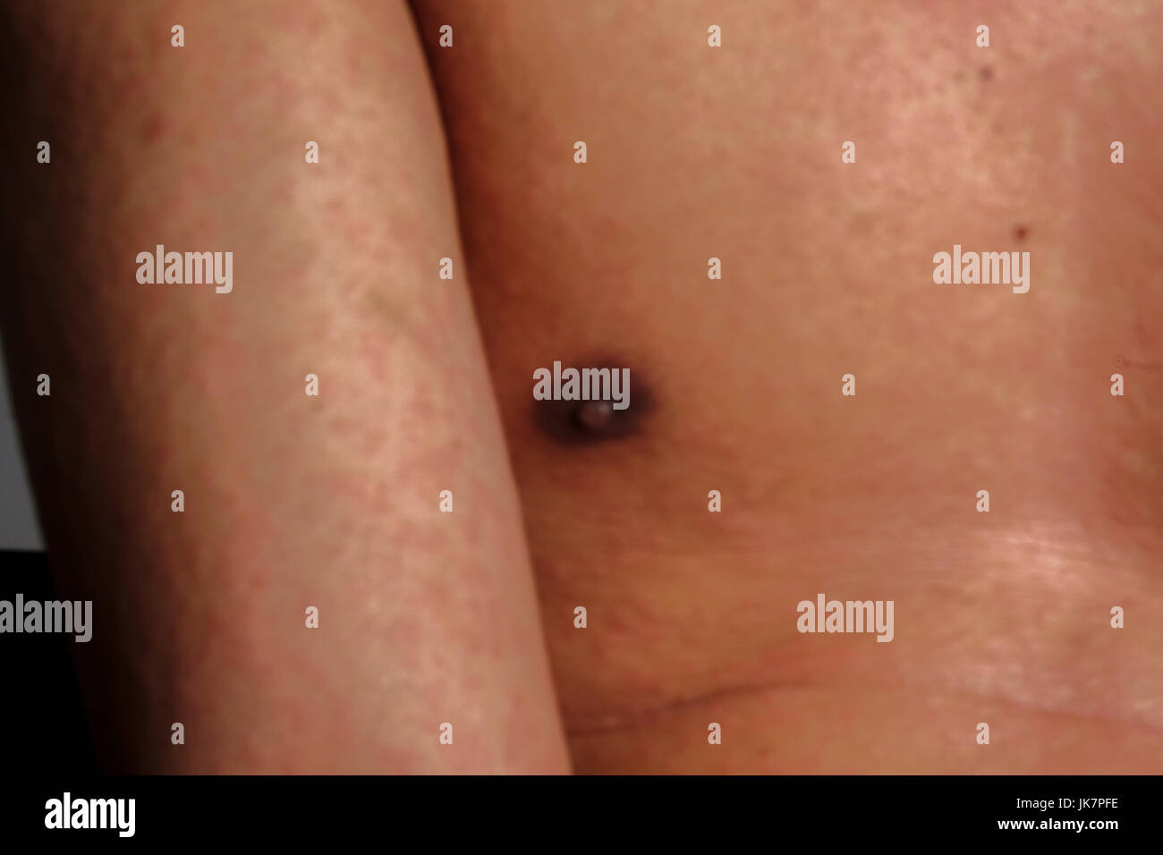 Man with dermatitis problem of rash ,Allergy rash - Stock Image
