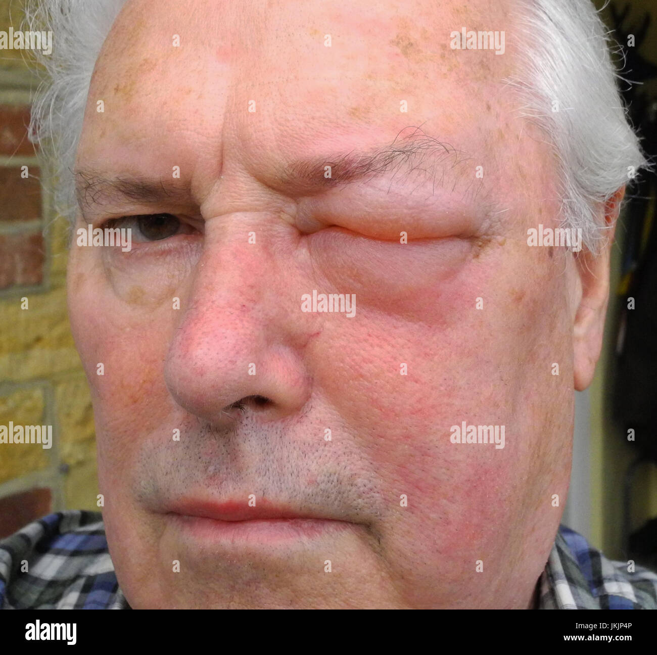 The image shows an allergic reaction to a wasp, bee, hornet, insect sting.  The reaction to a venomous sting can - Stock Image