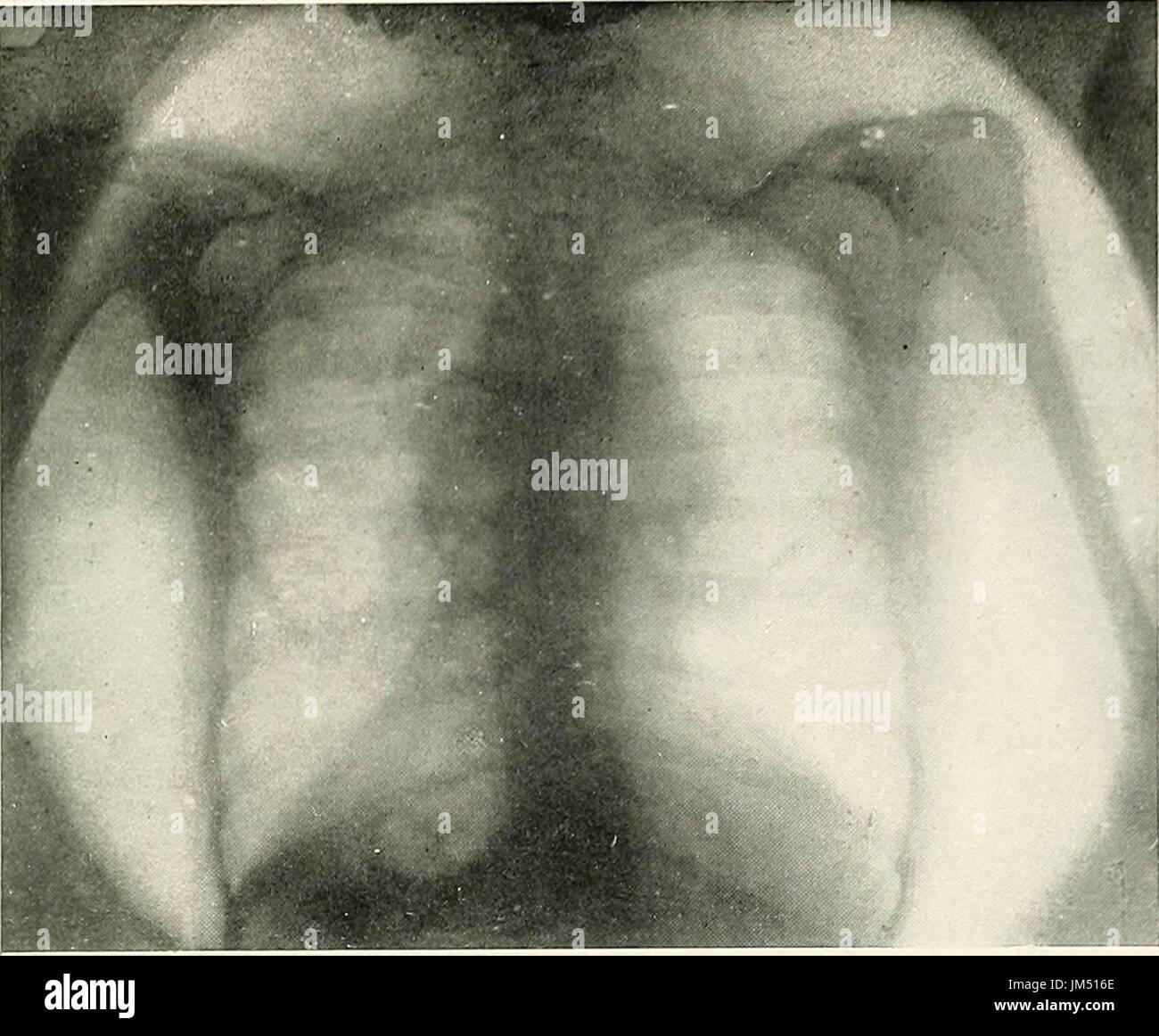 'Radio-diagnosis of pleuro-pulmonary affection' (1918) - Stock Image