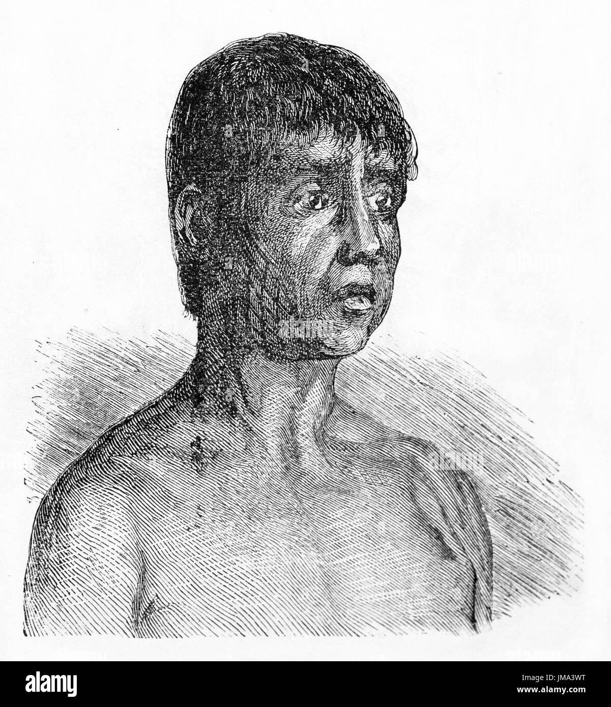 Old engraved portrait of Maoes man, Amazon region, Brazil. By unidentified author, published on Le Tour du Monde, Paris, 1861. - Stock Image