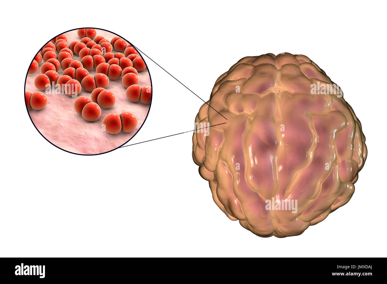 Meningitis caused by the bacterium Streptococcus pneumoniae, computer illustration. The illustration shows swelling of meninges and close-up view of bacteria S. pneumoniae. - Stock Image