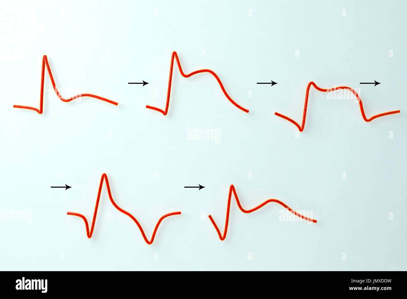 Evolution of an electrocardiogram (ECG) during a myocardial