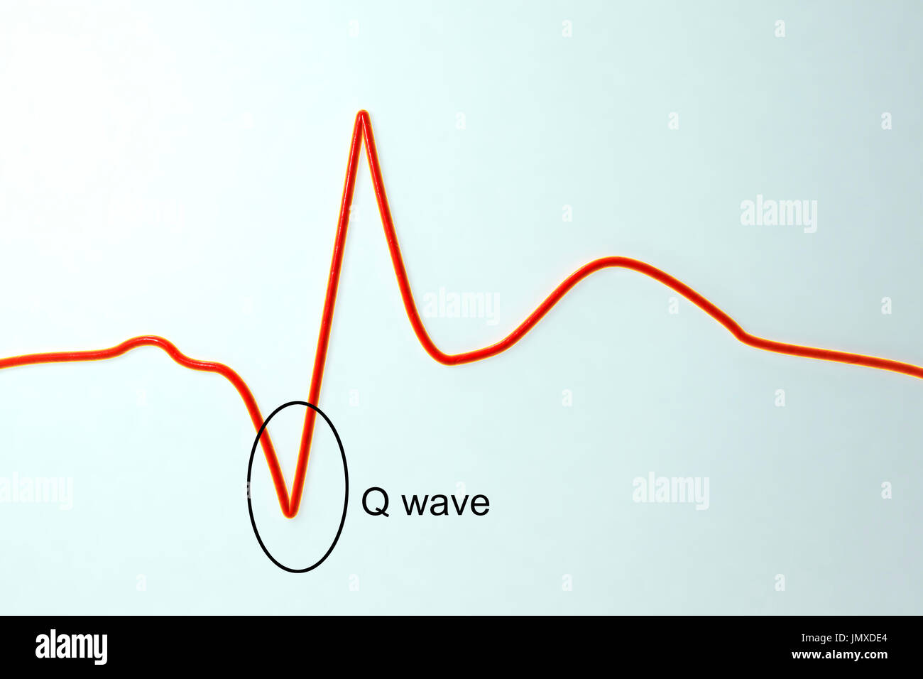 Electrocardiogram (ECG) during a myocardial infarction (heart attack). Computer illustration showing formation of pathological Q wave. - Stock Image