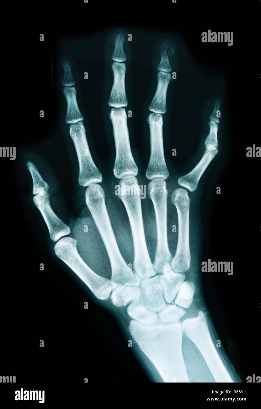 Human Wrist Anatomy Xray View Stock Photos & Human Wrist Anatomy ...