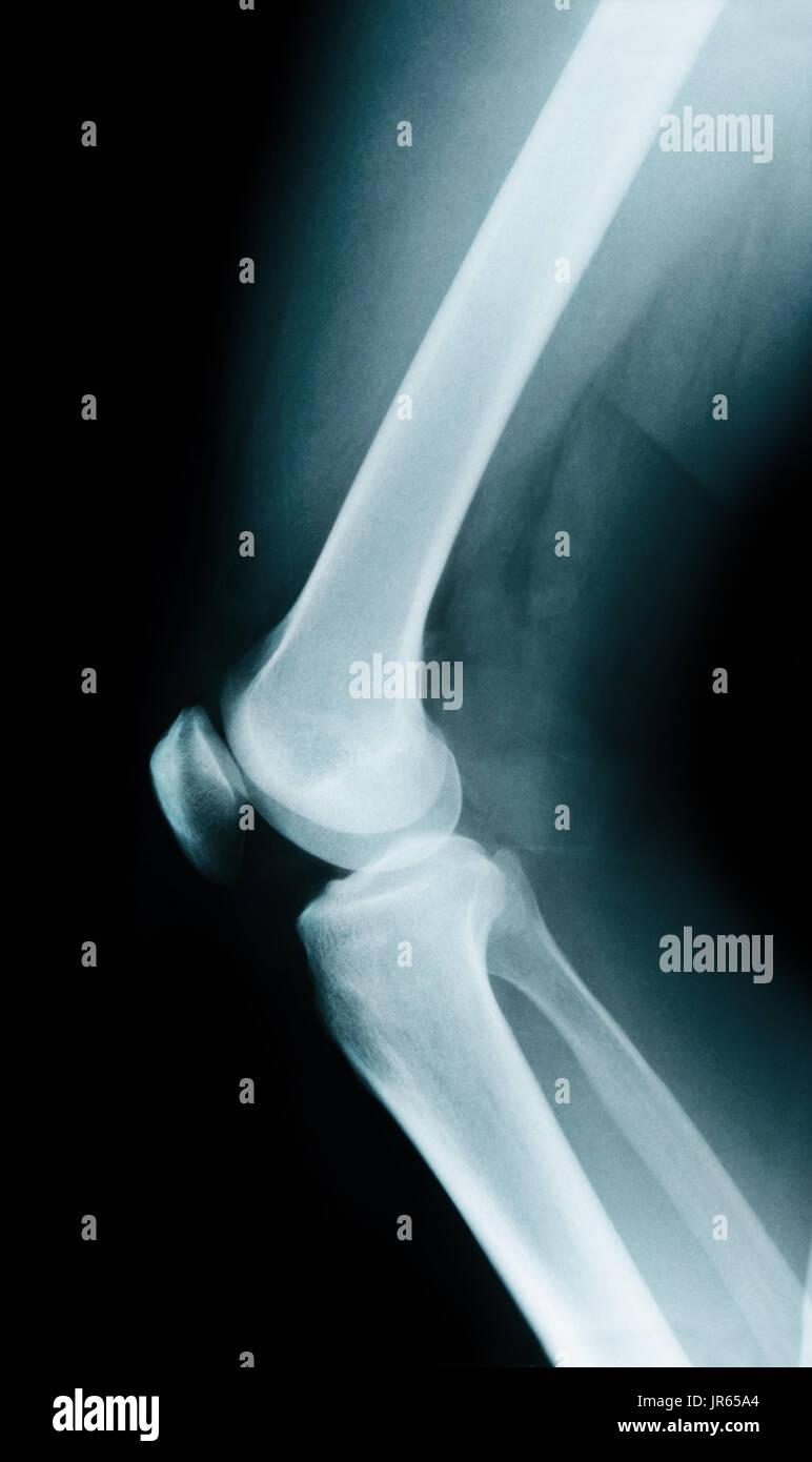 Knee bone anatomy x ray Stock Photo: 151955948 - Alamy