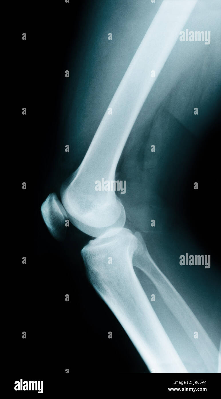 Knee bone anatomy x ray stock photo 151955948 alamy knee bone anatomy x ray ccuart Images