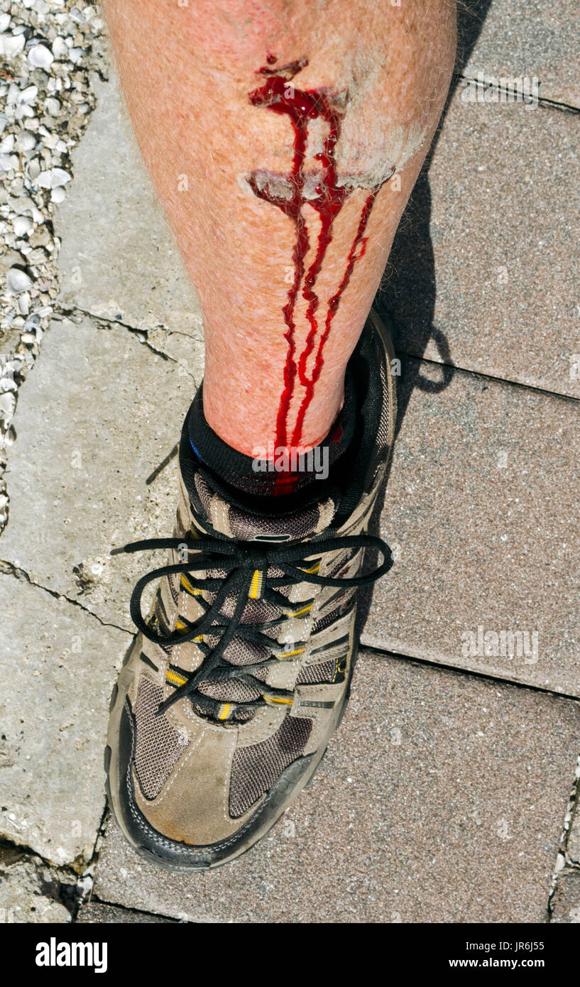 Rich red blood flows down the lower leg of a Caucasian man who suffered a superficial injury when he tripped and fell on some crushed rock. - Stock Image