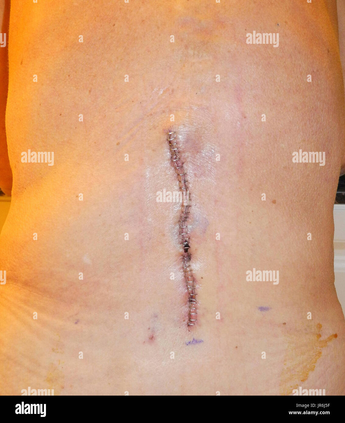 37 stainless-steel surgical staples were used to close this long vertical incision required for a lower back operation on the spine of a Caucasian woman. Using surgical staples is faster than suturing an incision by hand with needle and thread. - Stock Image