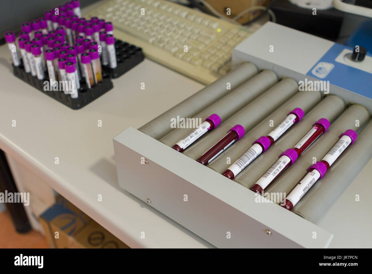 Zagreb, Croatia - June 14, 2017: Blood sample tubes ready for analysis - Stock Image