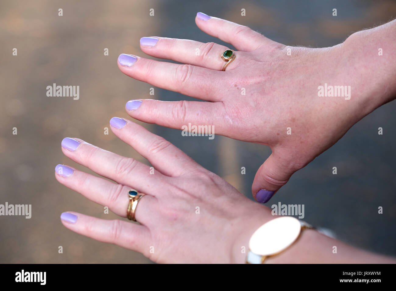 A pair of extremely swollen female hands or fat fingers as a result of excersising in hot weather. A condition caused by the blood vessels expanding - Stock Image