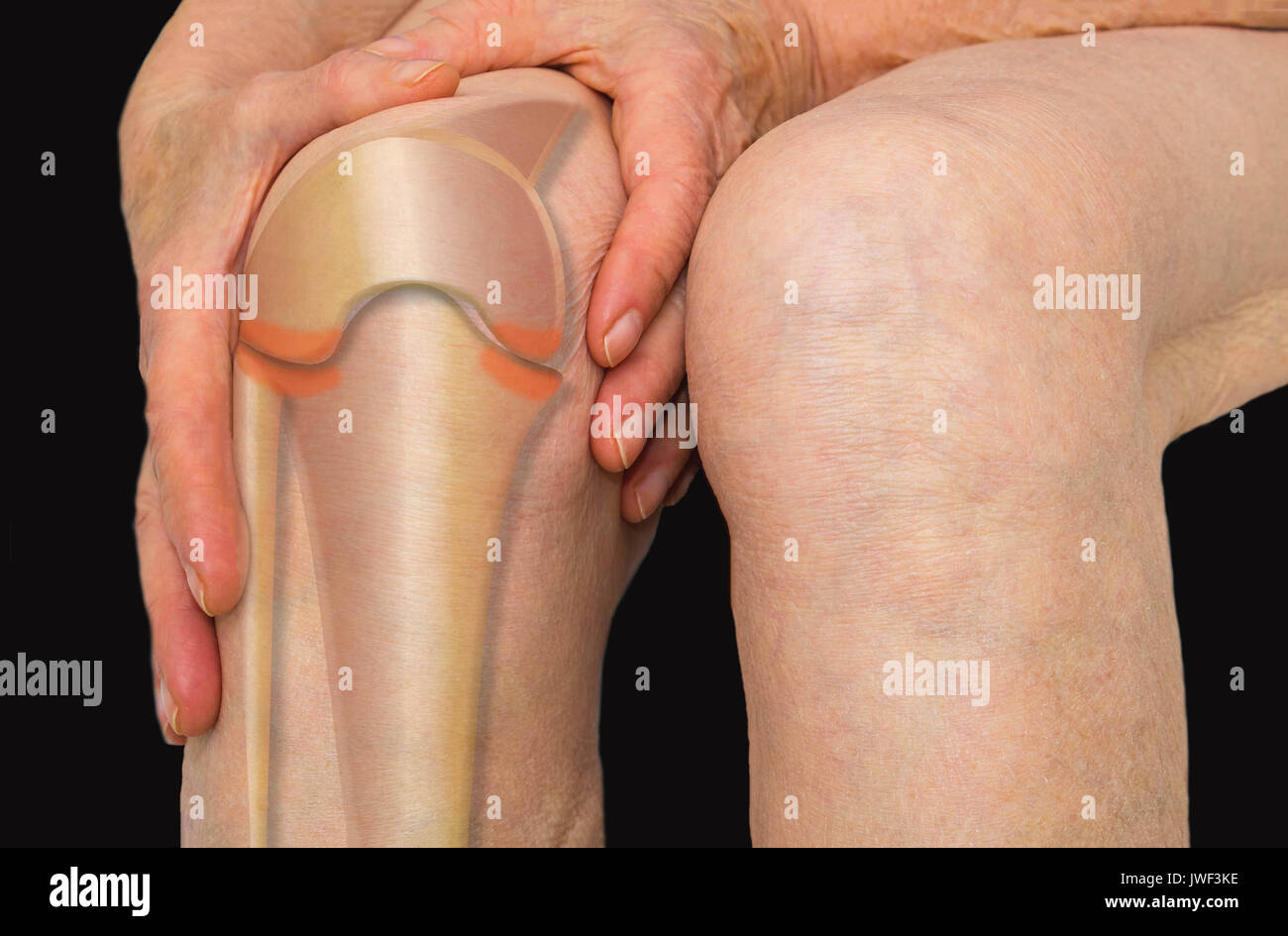 Senior woman holding the knee with pain - Stock Image