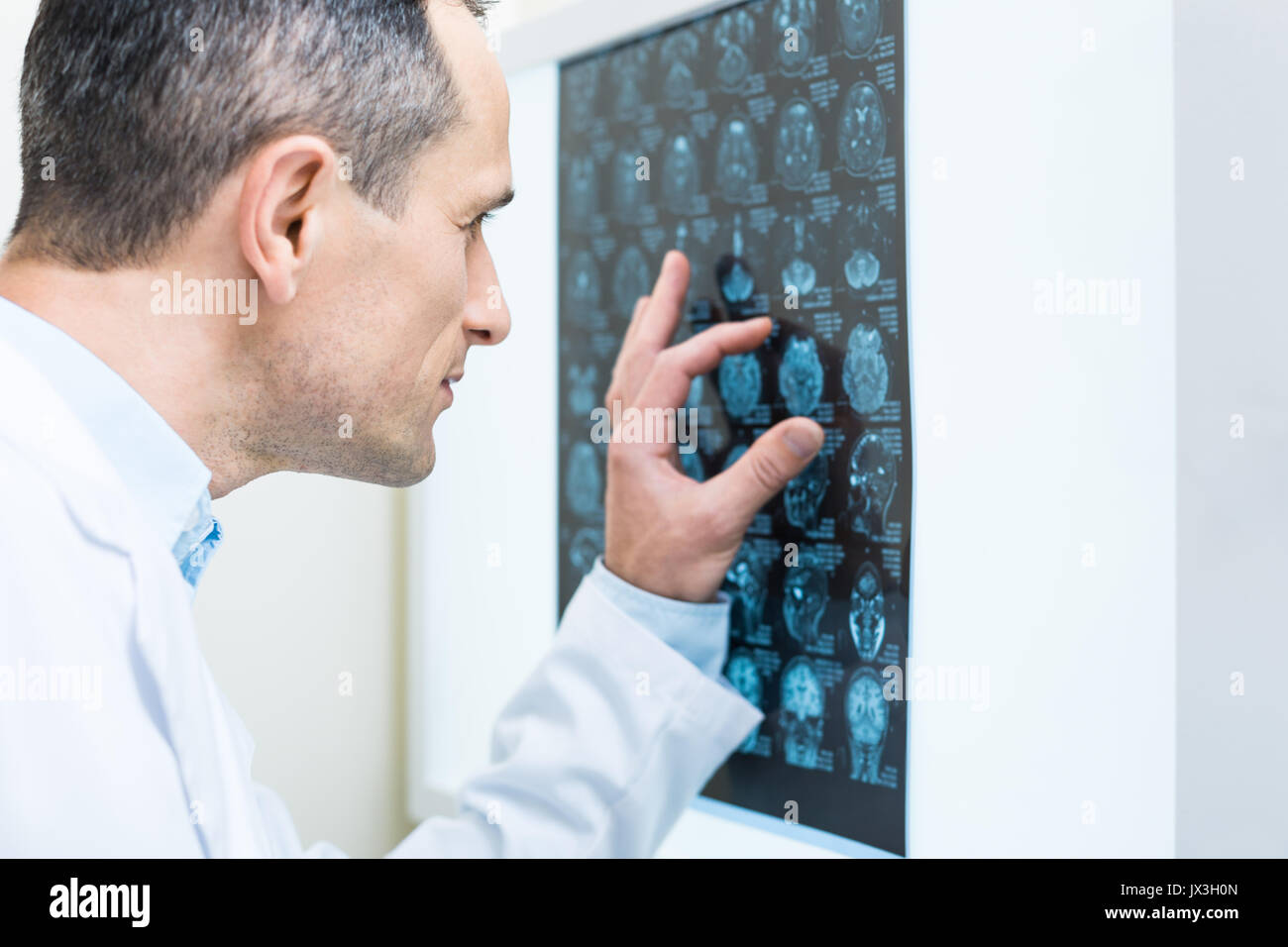 Close up of doctor analyzing results of computer tomography - Stock Image