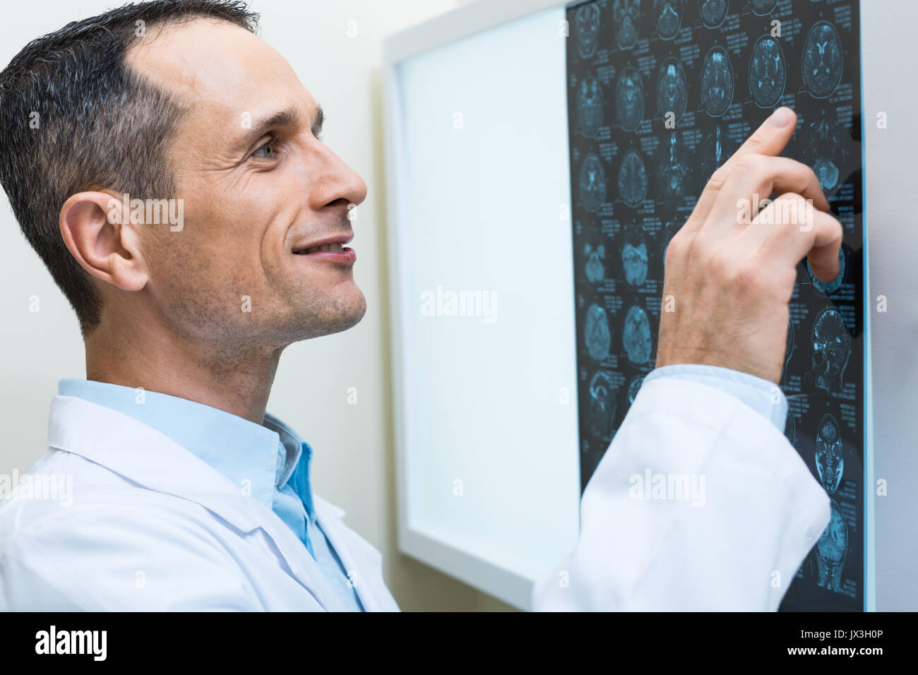 Close up of doctor scrutinizing computer tomography results - Stock Image