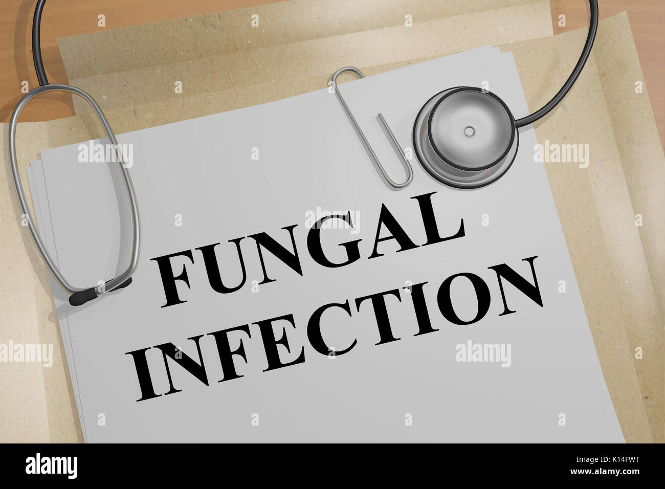 Fungal Infection Stock Photos Amp Fungal Infection Stock