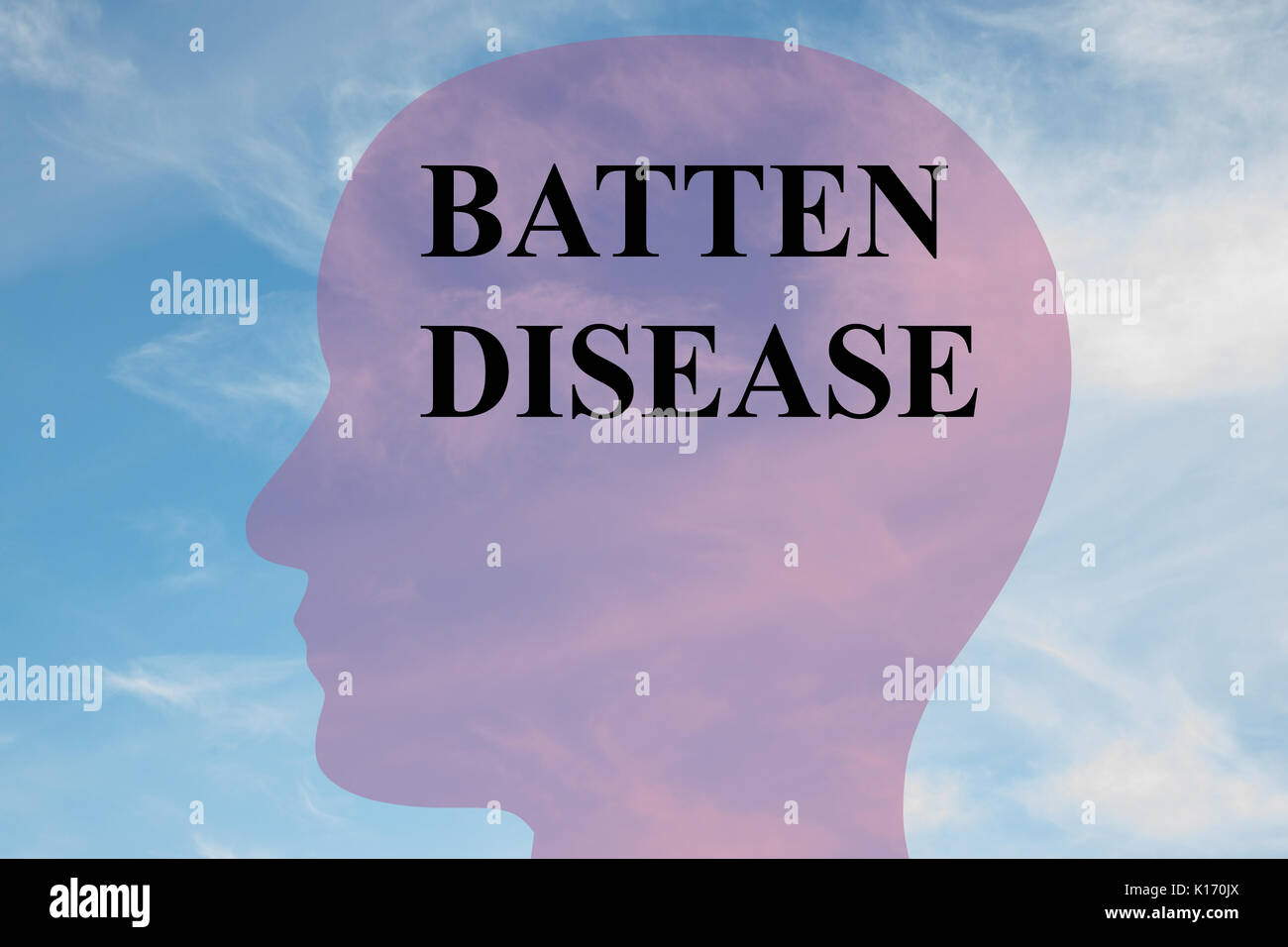 Render illustration of 'BATTEN DISEASE' title on head silhouette, with cloudy sky as a background. - Stock Image