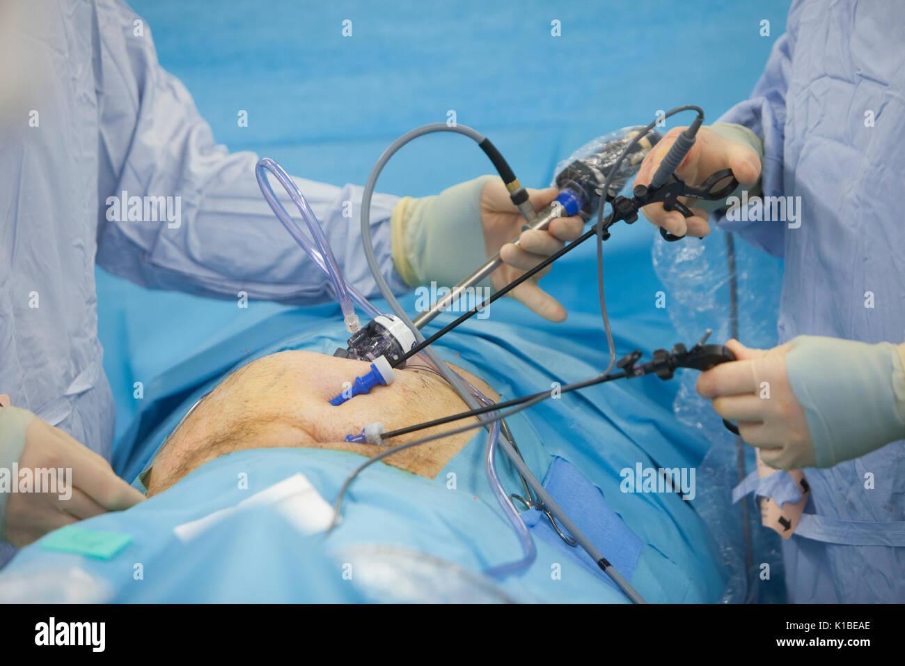 Larascopic operation to repair a bilateral hernia - Stock Image