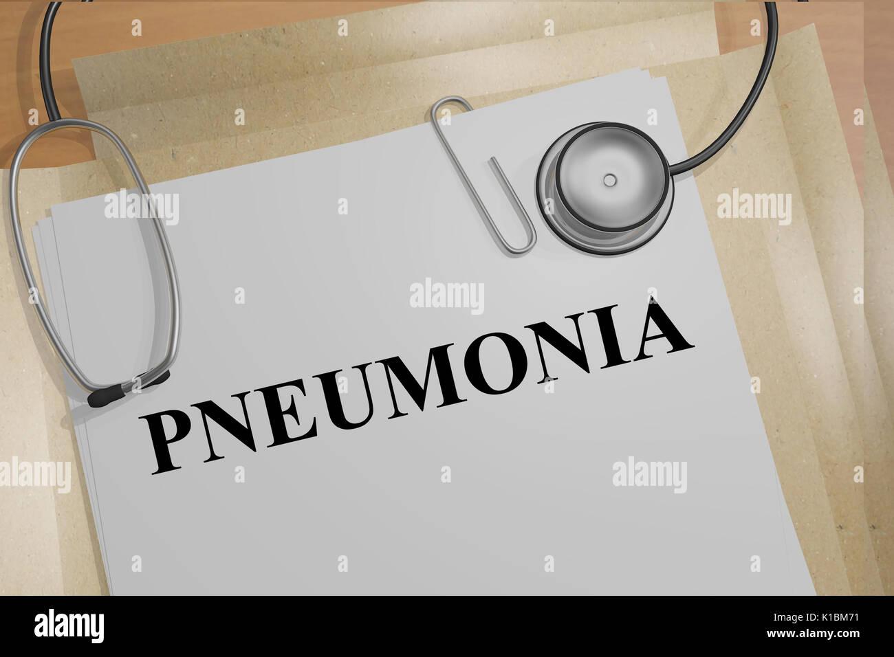 Render illustration of Pneumonia title on medical documents - Stock Image