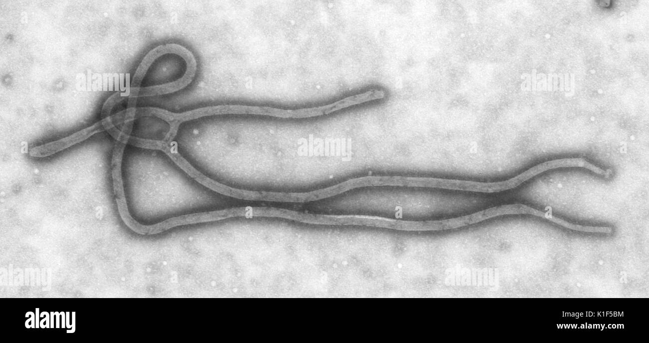 Created by CDC microbiologist Cynthia Goldsmith, this transmission electron micrograph (TEM) revealed some of the ultrastructural morphology displayed by an Ebola virus virion. See PHIL 10816 for a colorized version of this image. Ebola is a severe, often-fatal disease in humans and nonhuman primates (monkeys, gorillas, and chimpanzees) that has appeared sporadically since its initial recognition in 1976. Image courtesy CDC/Cynthia Goldsmith. 1990. - Stock Image
