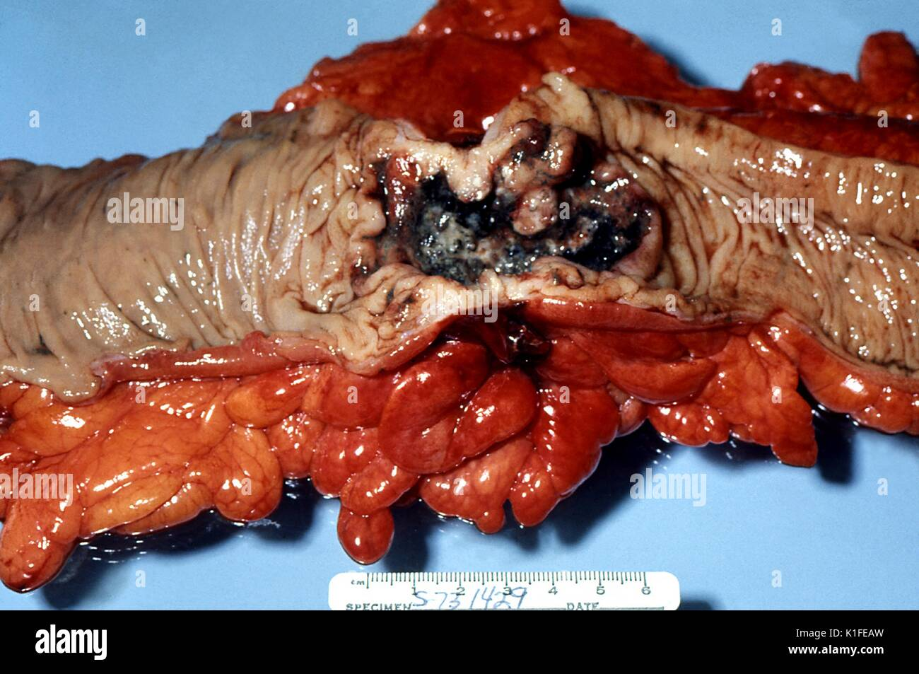 Under gross pathologic examination, this ulcerated adenocarcinomatous lesion of the colon was revealed. Ulcerated, endophytic adenocarcinoma of colon. Surgical specimen. Image courtesy CDC/Dr. Edwin P. Ewing, Jr., 1973. - Stock Image