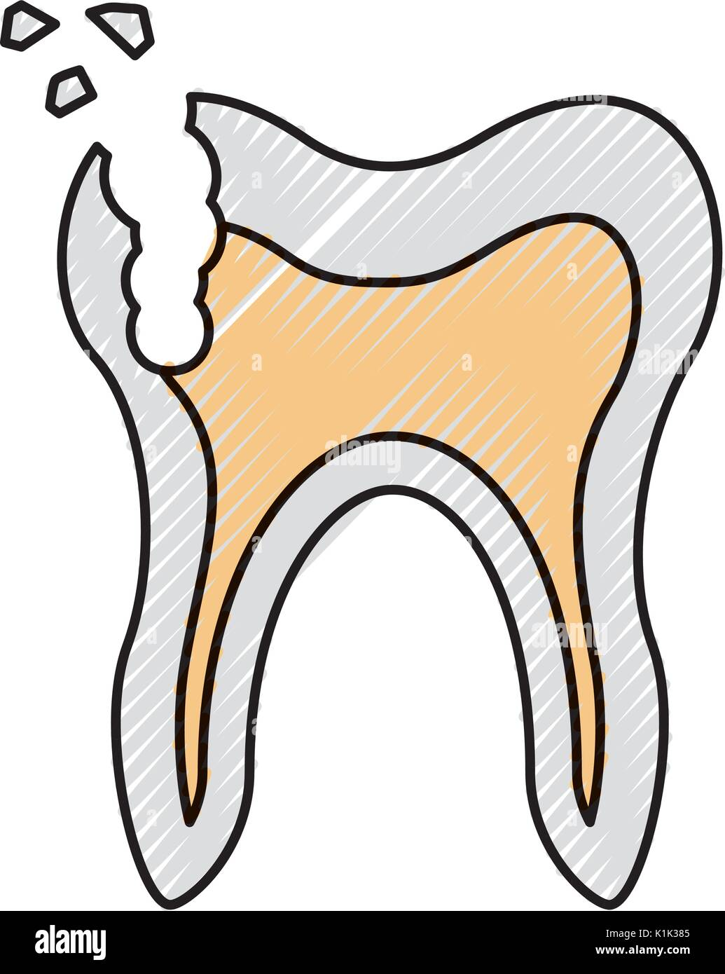 Human tooth with decay - Stock Image