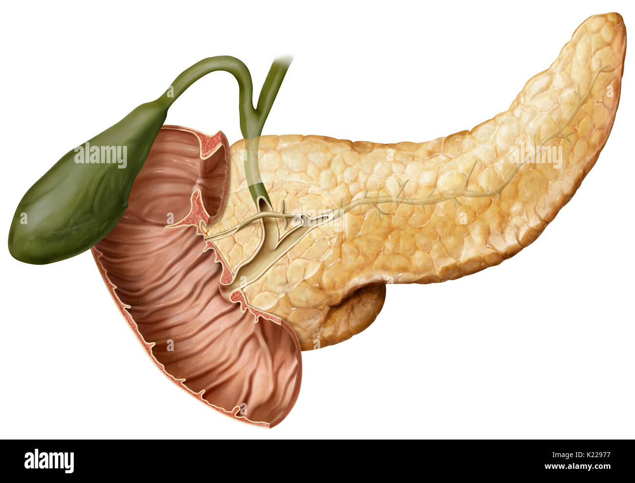 Obstruction of the pancreatic duct prevents the ejection of pancreatic juices into the duodenum. - Stock Image