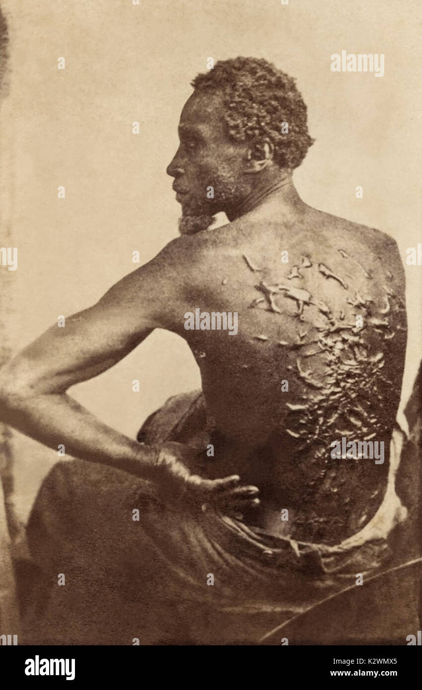 1863 photo of Gordon, an escaped slave from a plantation in Louisiana, showing the scars on his back from being whipped by his former overseer. Gordon (last name unknown) joined a black regiment of the Union Army, known as the Louisiana Native Guards, after his escape. - Stock Image