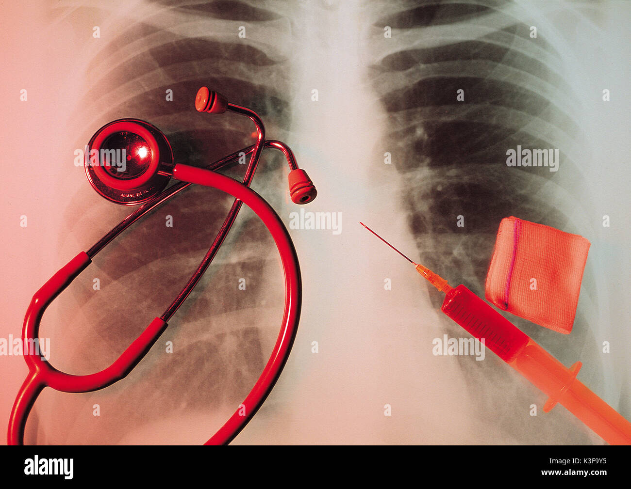radiograph close doctor's instruments - Stock Image
