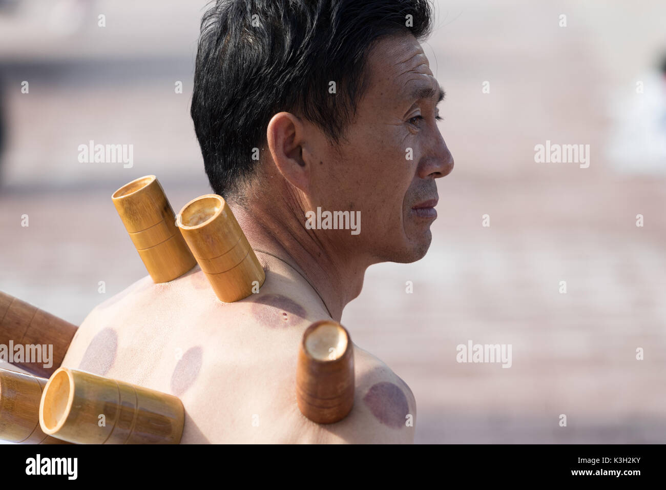 Duolun Xian, Inner Mongolia, China - July 28, 2017: Chinese Cupping Therapy is very common among Chinese people even in the streets.It is a traditiona - Stock Image