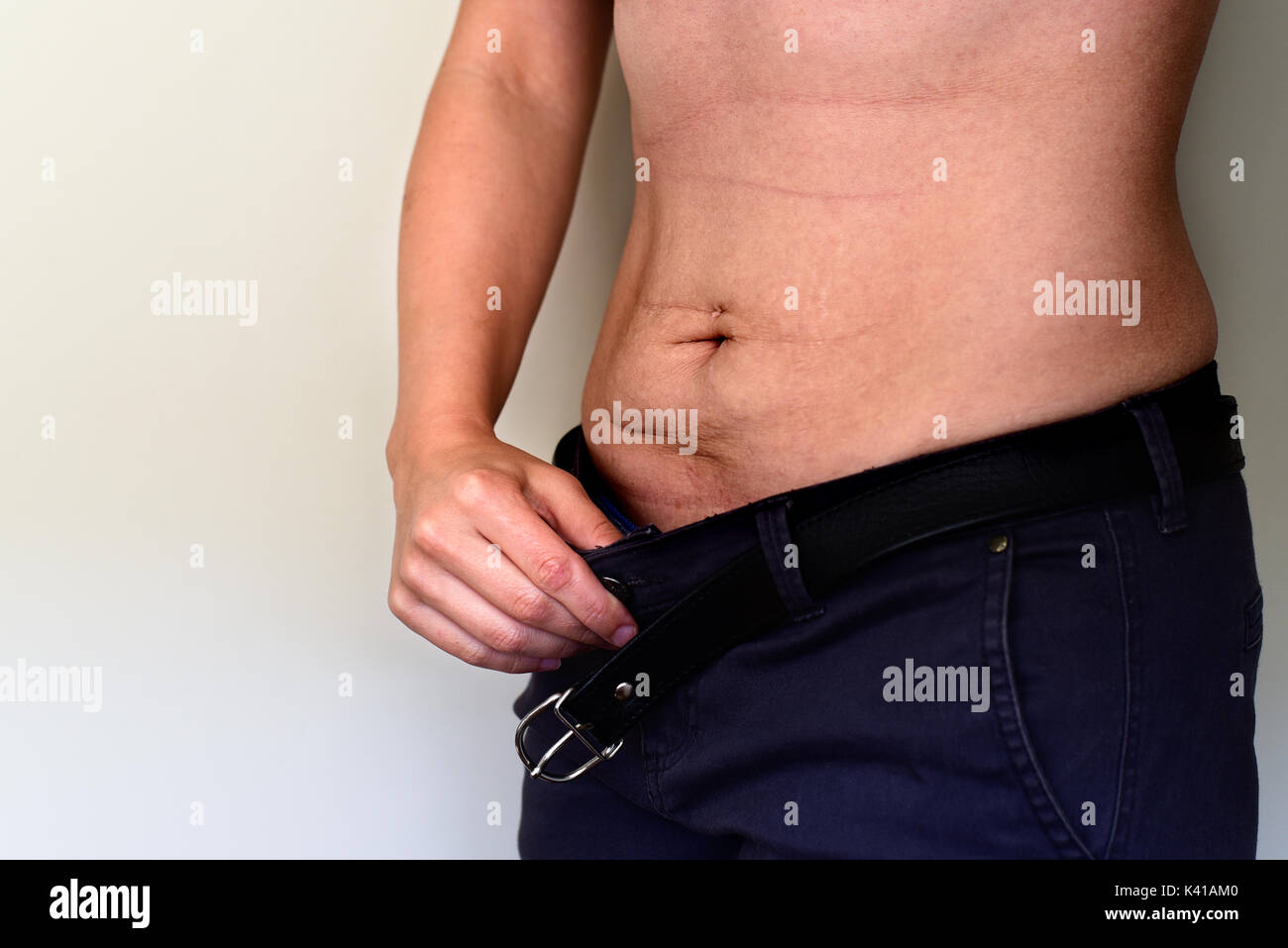pregnancy stretch marks after weight loss