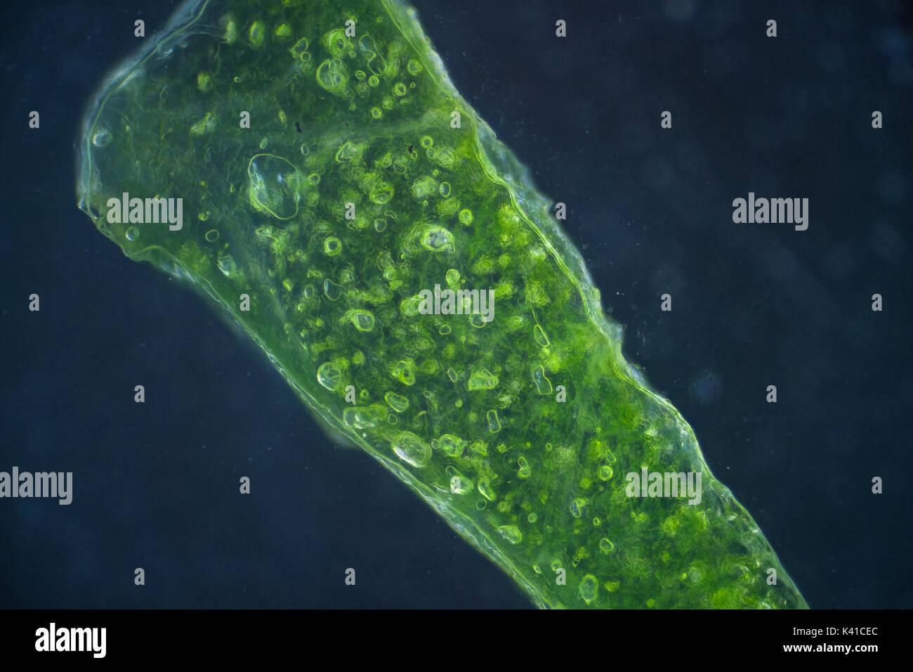 Lettuce cells under microscope, magnification x 100 dark field technique Stock Photo