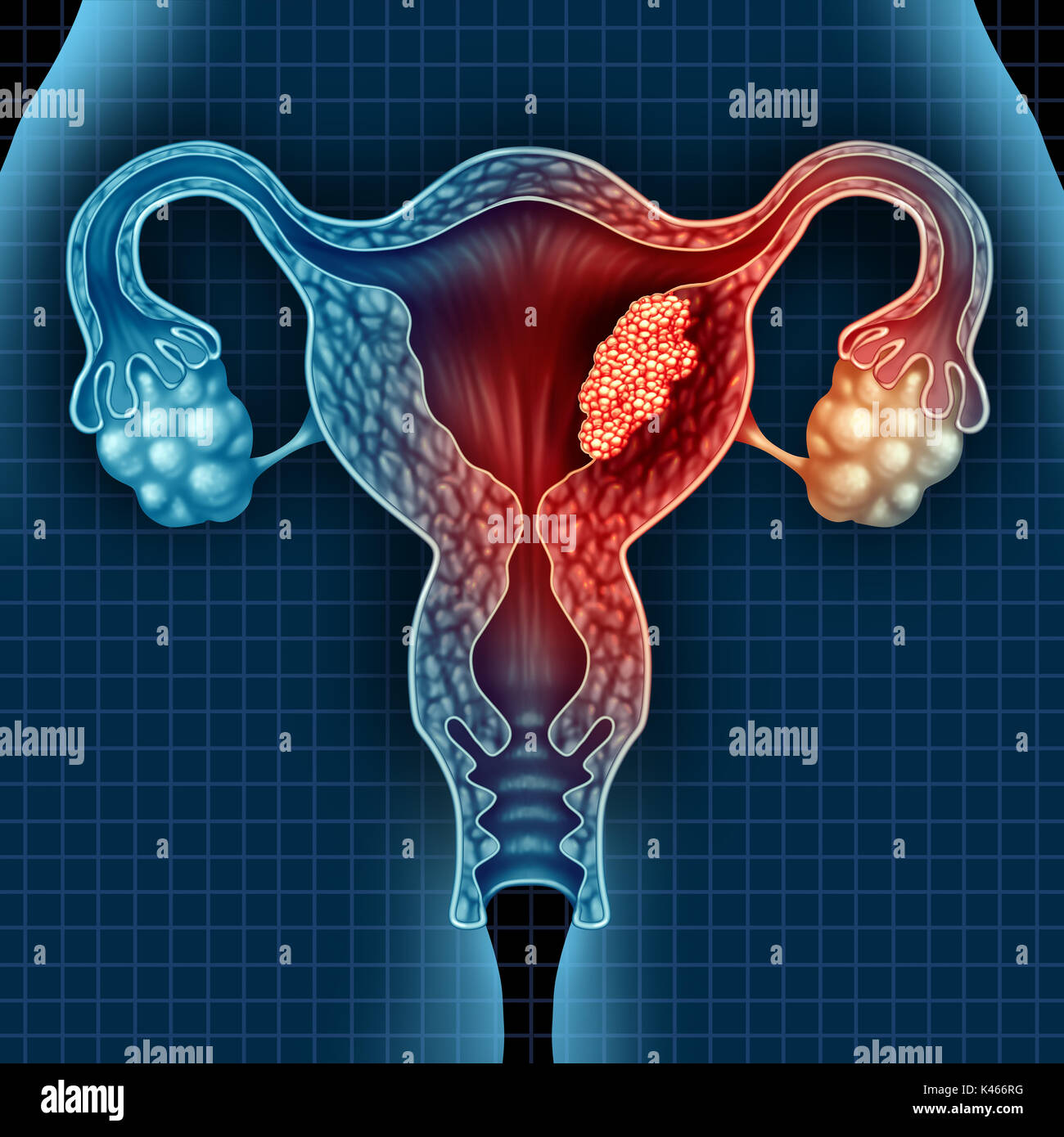 Uterus cancer and endometrial malignant tumor as a uterine medical concept as dangerous growing cells in a female body attacking the reproductive. - Stock Image