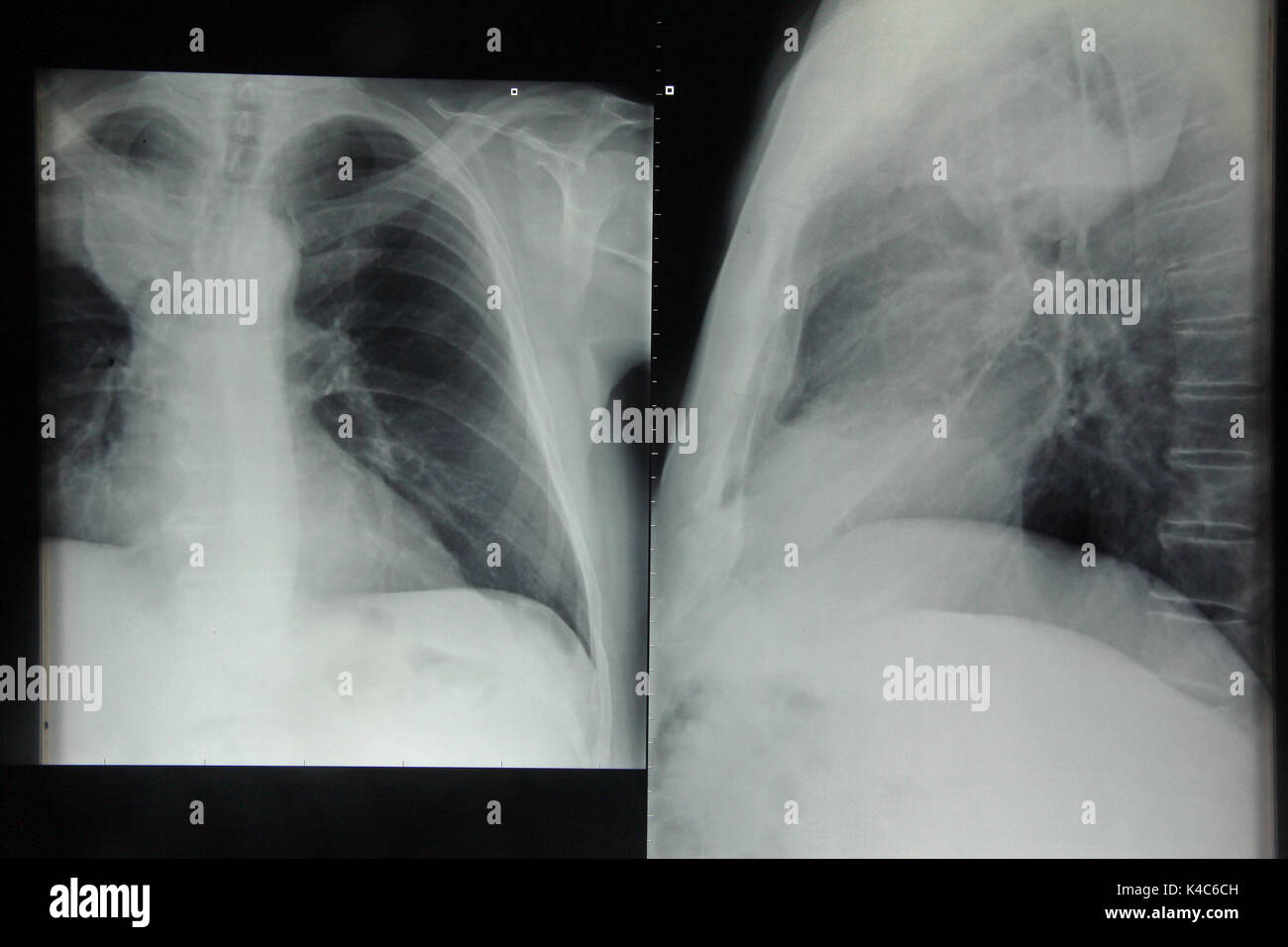X-Ray Image Of A Lung - Stock Image