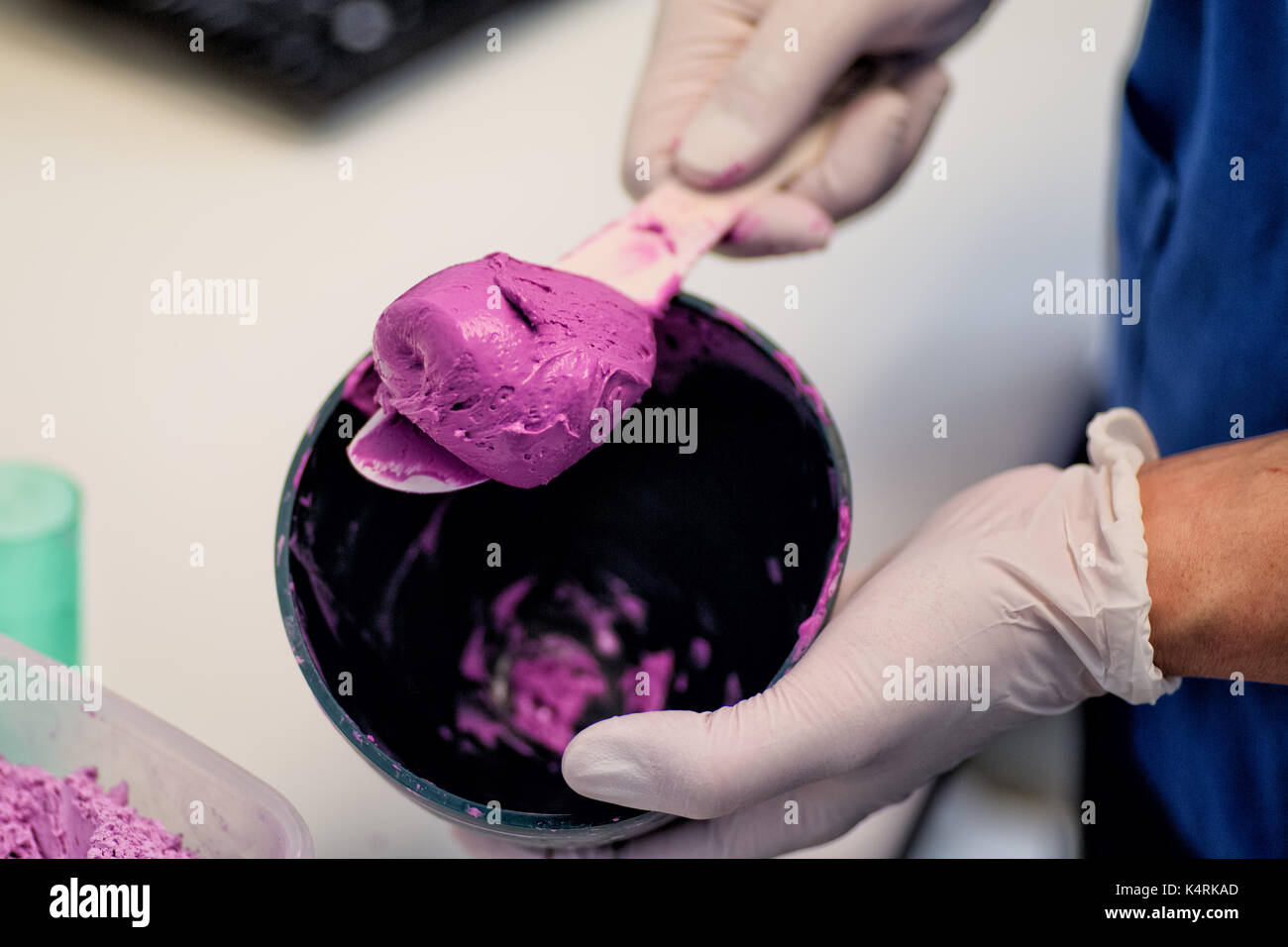 Mixed Dental Alginate Impression material used to make negative impressions of the teeth and soft tissues in the Stock Photo