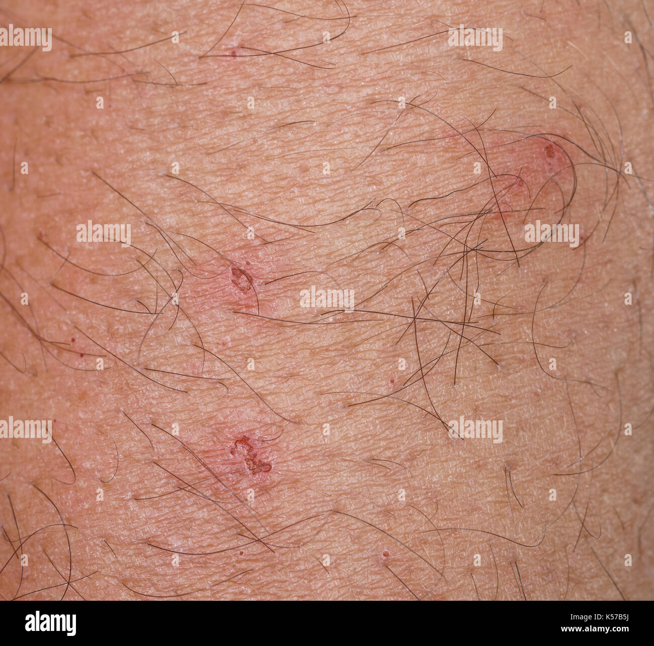 closeup of spot with scab over caucasian skin - Stock Image