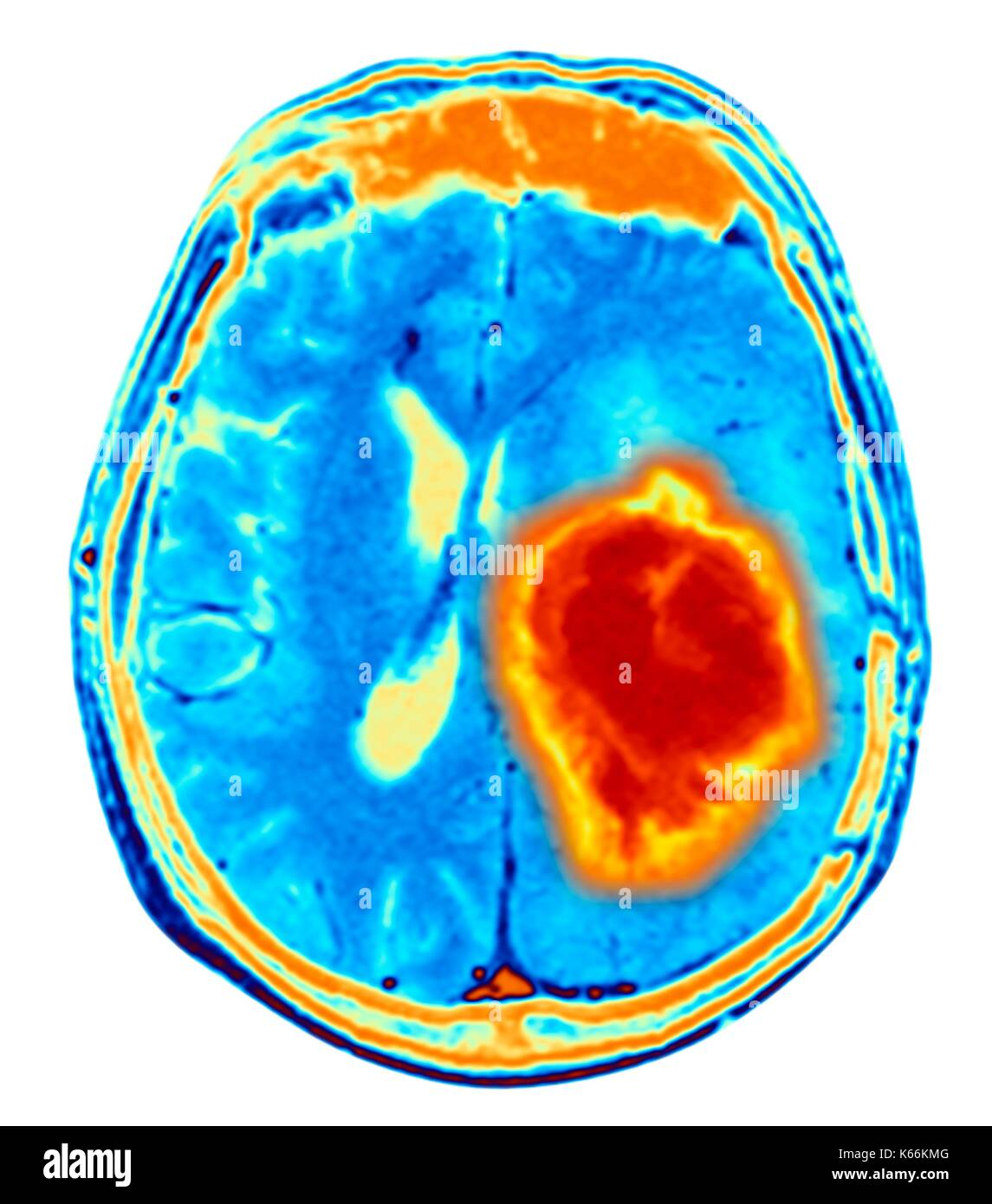 Brain tumour. Coloured Magnetic Resonance Imaging (MRI) scan of an axial section through the brain showing a metastatic tumour. At bottom left is the tumour (red-yellow) This tumour occurs within one cerebral hemisphere; the other hemisphere is at right. The eyeballs - not visible -are at top. Metastatic cancer is a secondary disease spread from cancer elsewhere in the body. Metastatic brain tumours are malignant. Typically they cause brain compression and nerve damage - Stock Image
