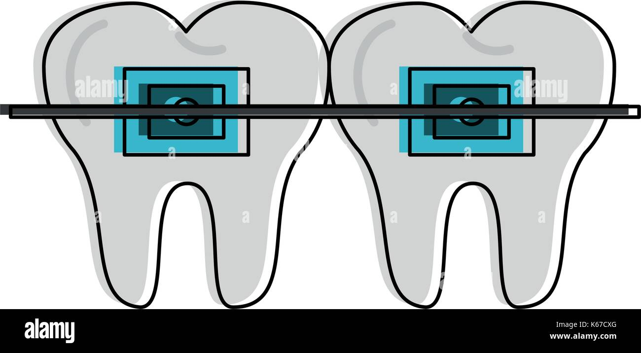 molars with braces dentistry related icon image  - Stock Image
