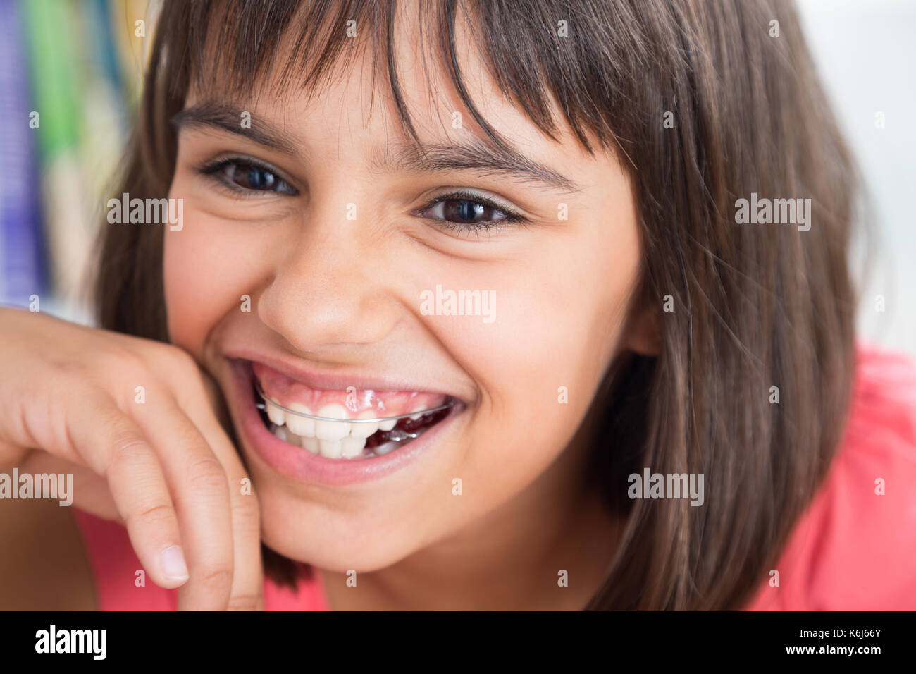 Portrait of a cute girl laughing wearing a removable orthodontic appliance - Stock Image