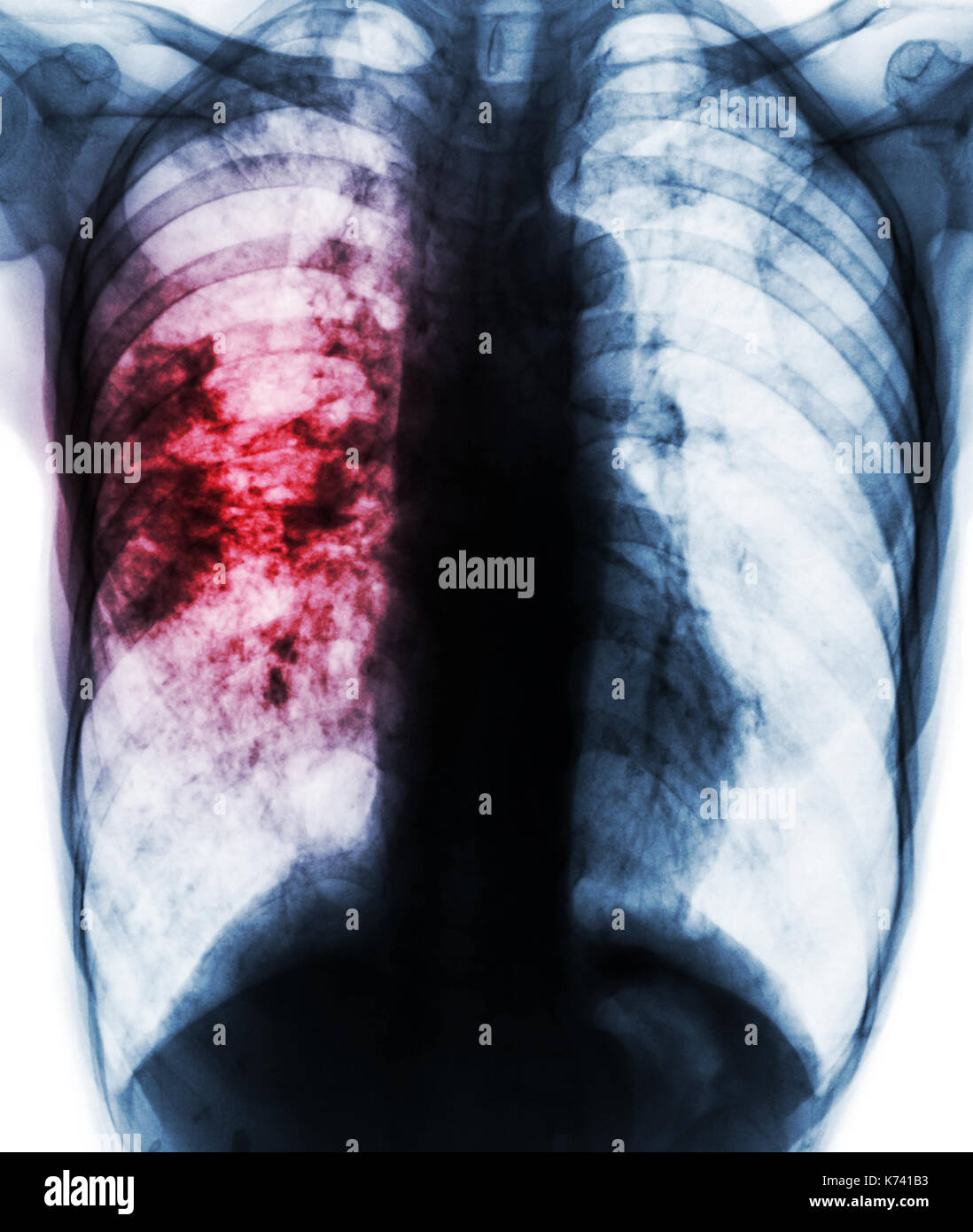 Pulmonary tuberculosis . Film x-ray of chest show patchy infiltrate at right lung due to TB infection . - Stock Image