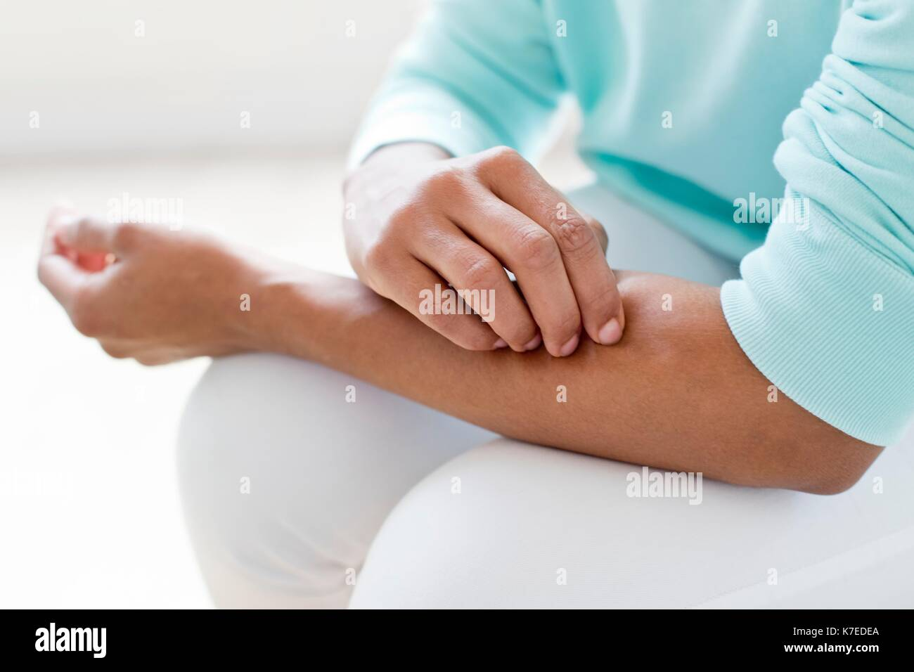Woman scratching arm. - Stock Image