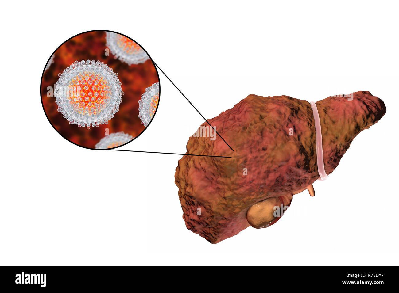 Computer illustration showing a cirrhotic liver and a close-up of hepatitis C viruses. Hepatitis C is a common cause of chronic hepatitis which progresses to liver cirrhosis. Viruses cause cell death (necrosis) in the hepatic lobules, which leads to scarring. This causes the liver surface to appear rough and lumpy instead of the usual smooth healthy appearance. The disease is irreversible and may lead to liver carcinoma. - Stock Image