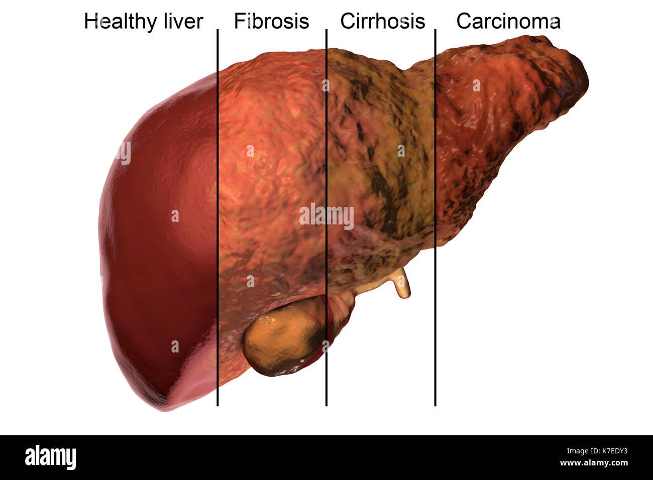 Liver Disease Stock Photos & Liver Disease Stock Images - Alamy